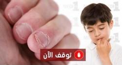مخاطر قضم الأظافر