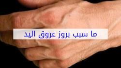 سبب بروز عروق اليدين